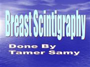 BREAST SCINTIGRAPHY