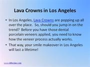 Lava Crowns in Los Angeles
