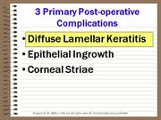 LASIK Complications 2001-DLK Dr. Jeff Machat
