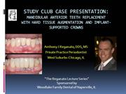 MANDIBULAR ANTERIOR TEETH REPLACEMENT WITH IMPLANT CROWNS