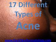 17 different types of acne