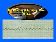 ECG- Reading and Interpretation