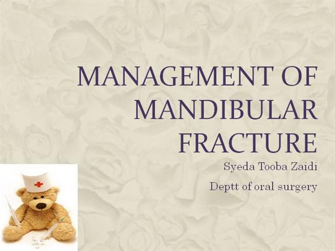 MANAGEMENT of MANDIBULAR FRACTURE |authorSTREAM