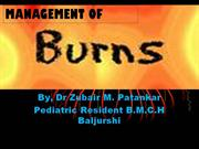 Burns Management