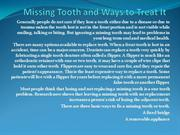 Missing Tooth and Ways to Treat It