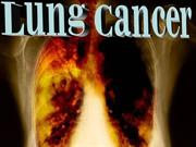 Lung cancer[1]