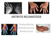ARTRITIS REUMATOIDE