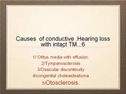 Conductive hearing loss with intact TM.Dr Javed shah FRCS.