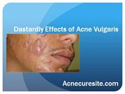 Dastardly Effects of Acne Vulgaris