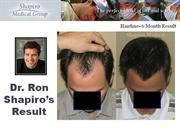 Dr. Ron Shapiro's Hair Transplant Result - 1239 grafts