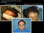 Dr. Panine - Before and After Photos - Hair Transplant