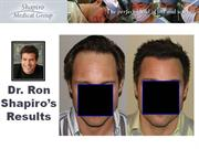 Dr. Ron Shapiro Hair Transplant Result  - Hairline