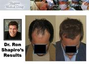 Dr. Ron Shapiro Hair Transplant Result