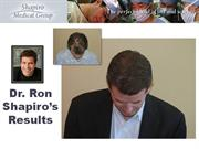 Shapiro Medical Group Hair Transplant Result -2317