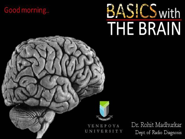 Basics With Radiological Anatomy Of Brain Authorstream
