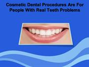 Cosmetic Dental Procedures Are For People With Real Teeth Problems