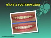 What is Tooth Bonding