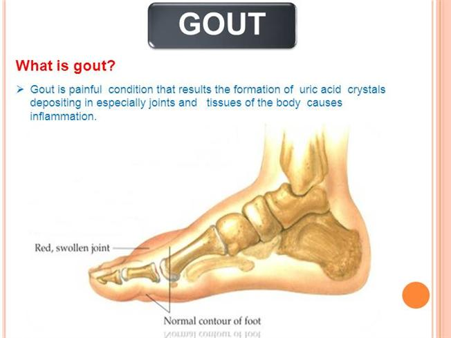 acute gouty arthritis diagnosis good food for gouty arthritis how to decrease uric acid in your system