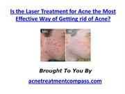 Is the Laser Treatment for Acne the Most Effective Way of Getting rid