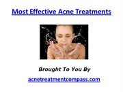 Most Effective Acne Treatments