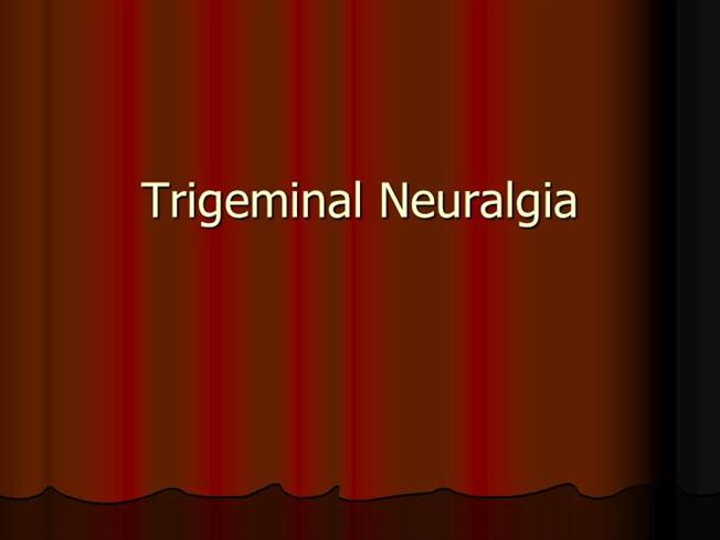 Trigeminal Neuralgia Authorstream