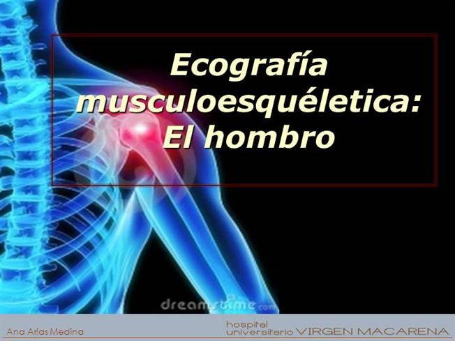 Ecografia Esencial Hombro |authorSTREAM