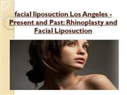 Beverly Hills Fat Transfer Los Angeles Facial Fat Transfer Procedure