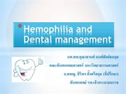 Hemophilia and Dental management