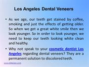 Los Angeles Dental Veneers 3-5