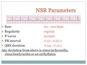 ECG tracings for acls