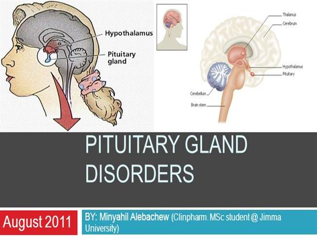 Pituitary Gland Disorders Authorstream