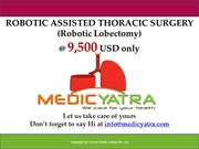 Robotic lobecotomy Surgery & Treatment || MedicYatra