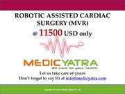 robotic Mitral Valve Replacement Surgery & Treatment || MedicYatra