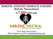 robotic thoracotomy  Surgery & Treatment || MedicYatra