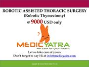 robotic thymectomy  Surgery & Treatment || MedicYatra