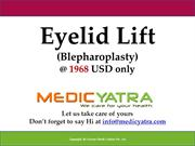 eyelid lift surgery & Treatment || MedicYatra