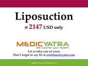 Liposuction surgery & Treatment || MedicYatra