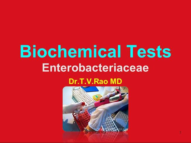 Biochemical Tests for Identification of Organism |authorSTREAM