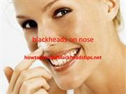 blackheads on nose ppt