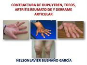 CONTRACTURA DE DUPUYTREN, TOFOS, ARTRITIS REUMATOIDE