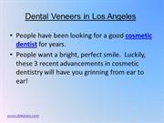 Dental Veneers in Los Angeles 7-9
