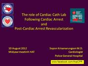 Optimal Timing for Revascularization after Cardiac Arrest