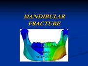 fracture mandible
