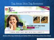 Tag Away Skin Tag Remover - Safe, Easy, Inexpensive andAll Natural