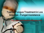 Toenail Fungus Treatment in Los Angeles – Fungal