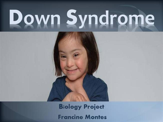 Anaesthesia for Child With Down Syndrome |authorSTREAM