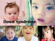 Down Syndrome.pptm