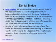 Dental Bridge 12-14