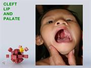 Cleft Lip & Palate Lecture
