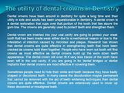 The utility of dental crowns in Dentistry